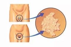 生殖器有白色豆腐渣?