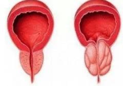 前列腺增生该如何治疗?