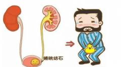 膀胱炎的早期症状是什么?