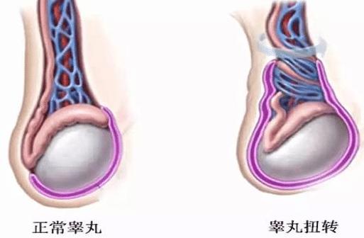 怎样补睾丸?