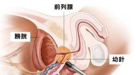 阴茎太敏感了怎么办?
