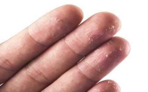 手掌脱皮怎么回事 手掌脱皮严重吗 手掌脱皮怎么办