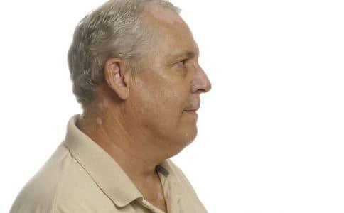 前列腺炎怎么办 前列腺炎如何预防 前列腺炎有什么预防方法